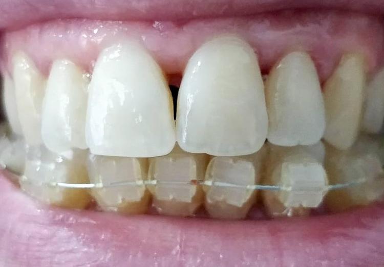 caso ortodonzia - dopo