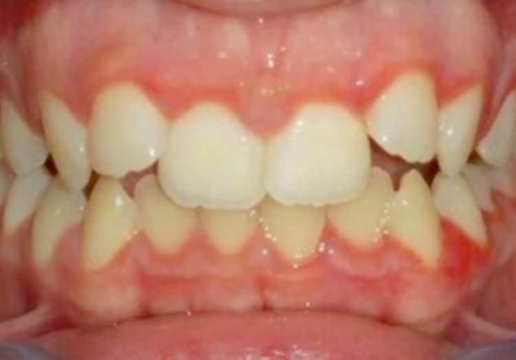 caso ortodonzia - prima